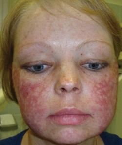 аллергия вокруг носа