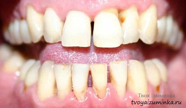 Желто-коричневый цвет зубов при пародонтите